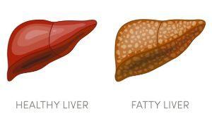 Fatty liver disease in leopard geckos